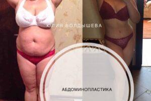 abdominoplastica