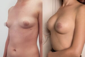 breast-surgery-before-after_5472332afa344033d2bf9e7b6b9d883e