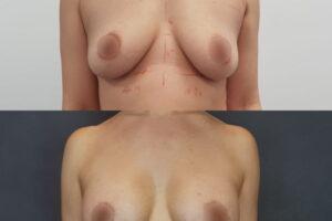 podtyazka-grudi-ne-kruglih-implantah-10_5472332afa344033d2bf9e7b6b9d883e