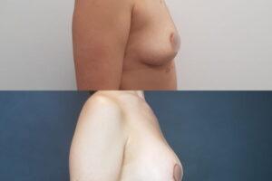 podtyazka-grudi-ne-kruglih-implantah-12_5472332afa344033d2bf9e7b6b9d883e
