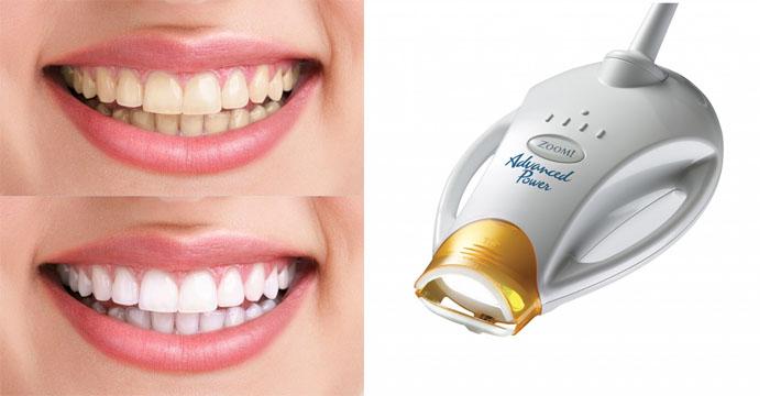 Отбеливание зубов с помощью геля